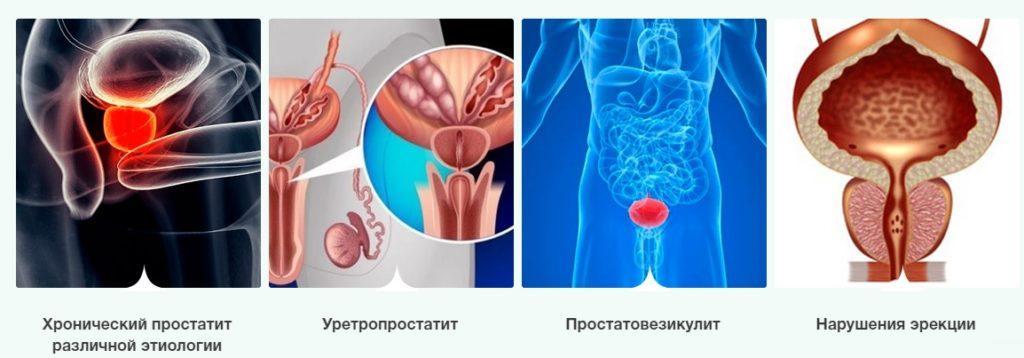 апапарат для лечения простатита калининград